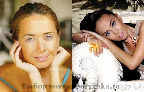 Жанна Фриске без макияжа