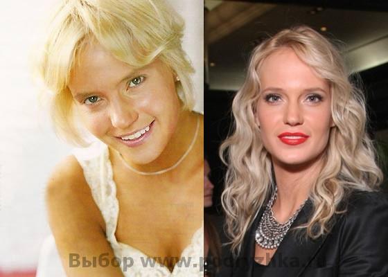 Наталья Ионова (Глюкоза) без макияжа