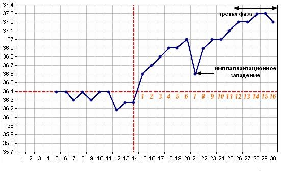 Признаки беременности на графиках базальной температуры