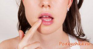 Как вылечить герпес на губах: способы быстрого купирования