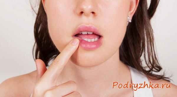 Как быстро вылечить герпес на губах - таблетки, мази, народные средства, заговор